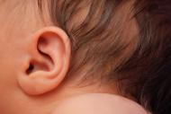 ניתוח הצמדת אוזניים לילדים ותינוקות