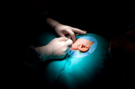 ניתוח פלסטי אוזניים