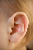 אוזניים בולטות ילדים
