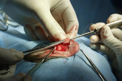 מנתח אוזניים מומלץ
