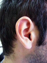 הצמדת אוזניים החלמה
